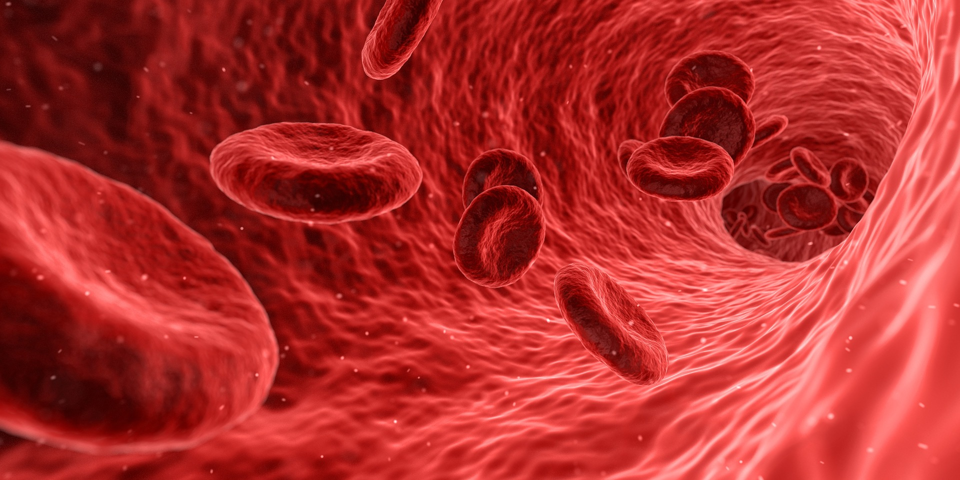 anemia (https://pixabay.com)